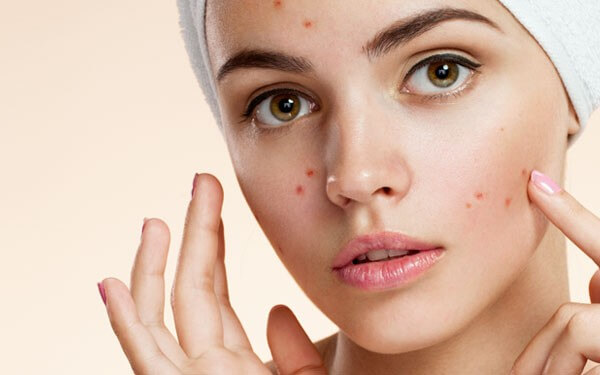 Microdermabrasion for acne and acne scarring