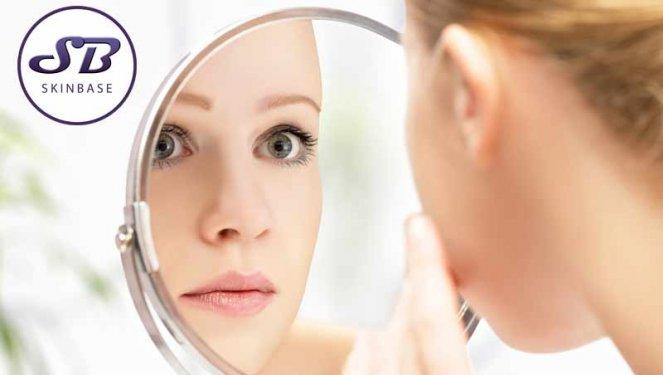 Treating acne with SkinBase IPL