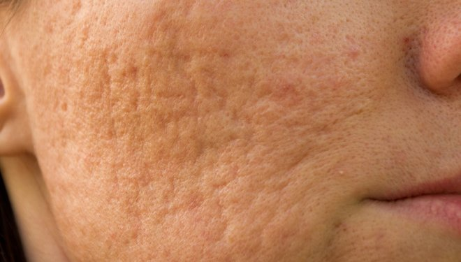 Are we doing enough for acne sufferers?