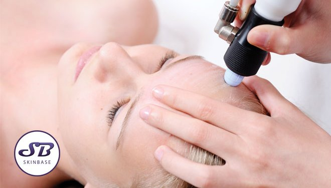 Don't Offer Microdermabrasion? Time to Introduce it!