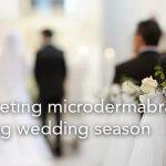 Marketing Microdermabrasion during wedding season